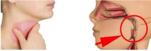 Боль между лопаток комок в горле на протяжении нескольких недель