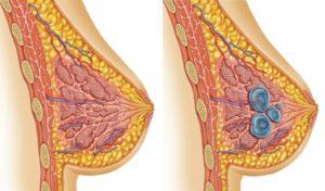 После замершей беременности уплотнение в верху левой молочной железы
