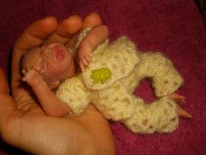 Новорожденный не какает