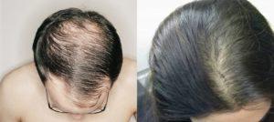 Выпадение волос при низком ферритине
