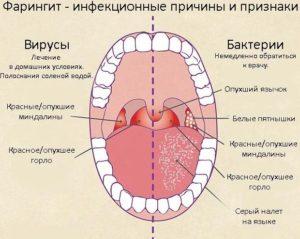 Хронический фарингит. Бактериальный или вирусный?