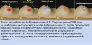 Жидкость после удаления фиброаденомы
