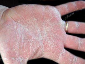Белый налет на руках