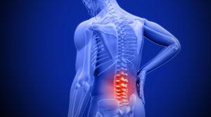 Боль в спине при кисте