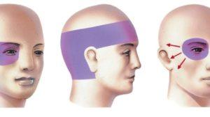 Опухает левый глаз и болит левая половина головы