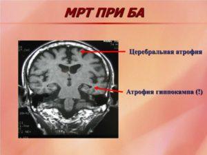 Атрофия гиппокампа