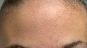 Появились невидимые мелкие пупырышки на лице