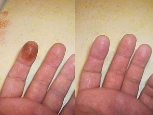 Много марганцовки попало на кожу