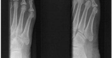 Перелом основания 5-й плюсневой кости
