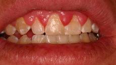 Опухла десна за верхними зубами