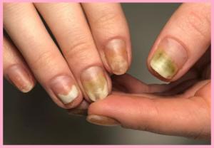 Отслоения ногтя после гель-лака