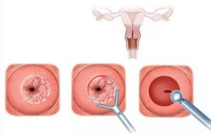 Задержка 15 дней после биопсии шейки матки