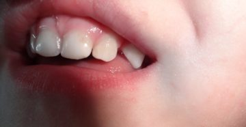 Черное пятно на десне у ребенка