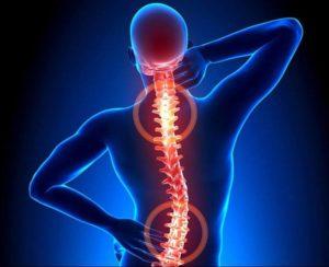 Блуждающие боли в спине