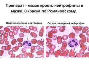 Нейтрофилы в мазке