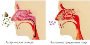 Стекание слизи по задней стенки носоглотки